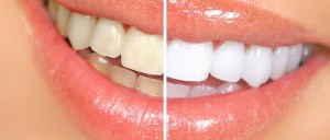 whiteningteeth